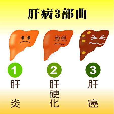 肝炎,肝硬化,肝癌,肝病