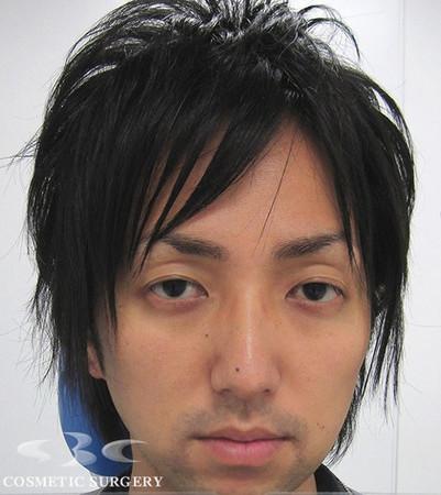 日本男整形割雙眼皮,割完後「變態感」UP↑