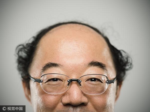 ▲禿頭。(圖/CFP)