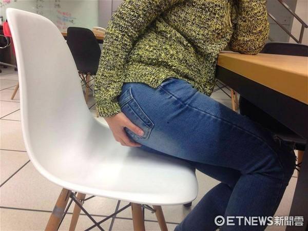 櫃姐吃太補肛門突長「血栓痔」。(圖/記者李佳蓉攝)