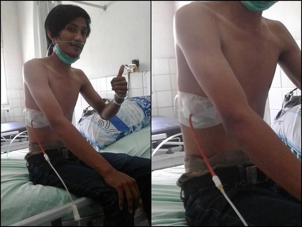 ▲▼先生抽菸抽到「側腹插管」 太太痛心PO照:都是氣胸害的。(圖/翻攝臉書/Agun Gunawan)