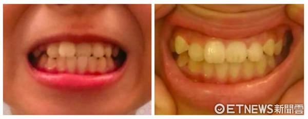 牙齒矯正。(圖/台北慈濟醫院提供)
