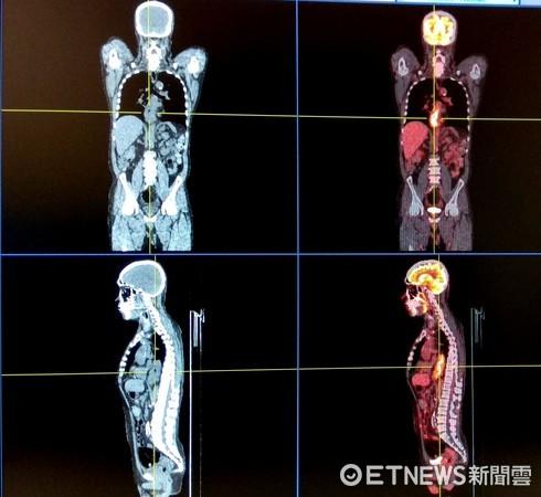 4d高阶正子电脑断层扫描仪(petct)可提供高解析度影像.