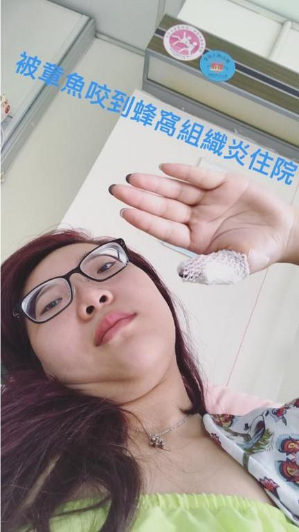 ▲▼宛宛兒錄影「章魚吸奶」出意外,蜂窩性組織炎緊急住院。(圖/翻攝自宛宛兒臉書)