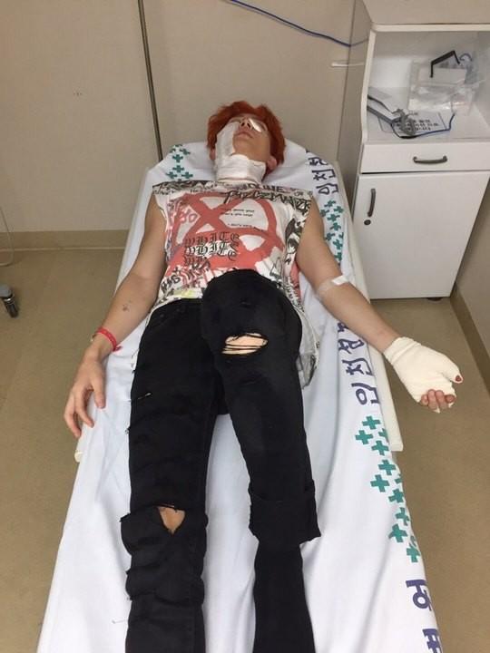 ▲快訊/男團拍MV爆炸意外 二度燒傷身上殘餘數十碎裂物(圖/翻攝自網路)