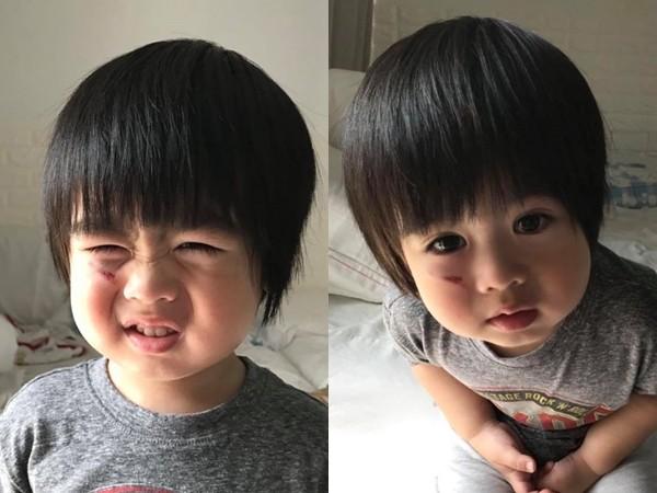 林志颖双胞胎儿撞伤! kyson「左脸颊出血」图片