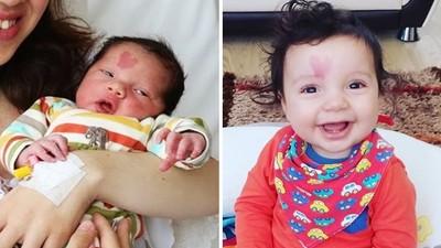出生前「上帝對他比愛心」!心型胎記男嬰長大了 特別樂觀又愛笑
