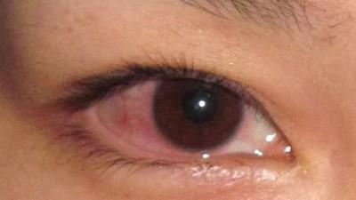 空汙嚴重「結膜炎」紅眼人大增!肥皂清潔眼瞼 有效降低感染率