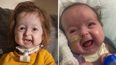 2歲女童「一夕蒼老」爸媽嚇哭!她忍病痛愛笑鼓舞家人 醫無奈:治不好了