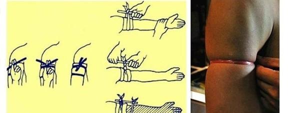 把小套套拿出来,像是用止血带一样绑住流血的手或脚就可以了.图片