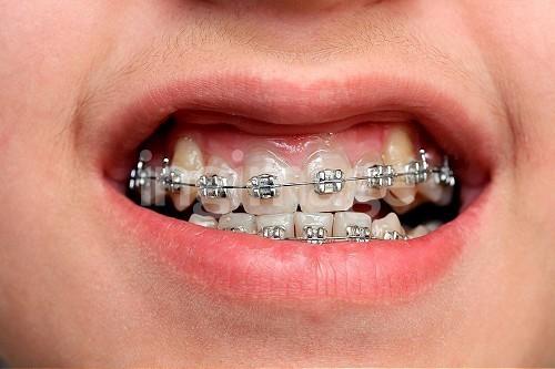 牙套。(圖/達志影像/示意圖)