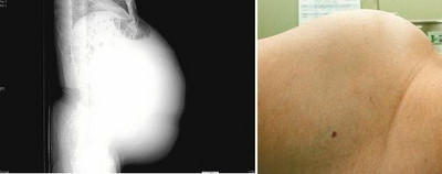 婦肚大如冬瓜 取出22公斤卵巢
