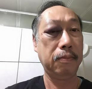吳家誠控警說謊:我是被打非自摔