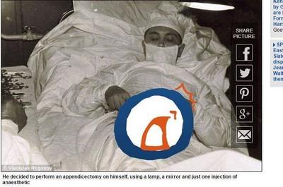 受困南極患急性盲腸炎 「怪醫黑傑克」自己動刀割闌尾