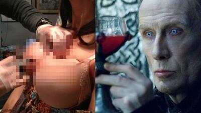 最新整型「吸血鬼隆乳」!為何...在台灣違法