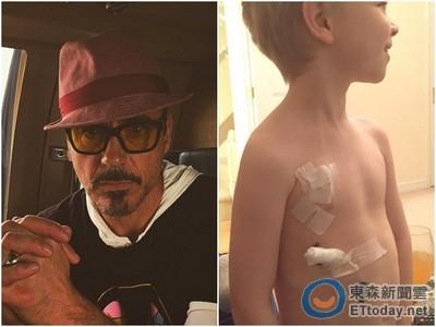 7歲童罹病挖胸保命 媽呼叫鋼鐵人小勞勃道尼立馬出現