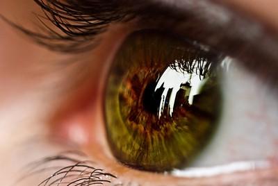 幼時發燒傷視神經「近視逾千度」