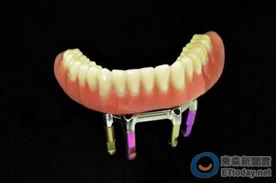 牙齒藝術! 牙齒動搖該「保留」還是「拔掉植牙」?