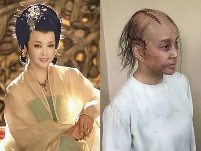 驚!不老女神劉曉慶禿髮毀容 頭頂爬滿蜈蚣傷疤