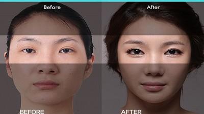 矮+胖+黑+禿頭+痘痘+單眼皮?請怪你父母的基因