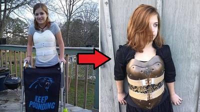 少女車禍骨折,朋友把她的護具改成「龐克盔甲」