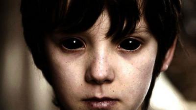 好心請「黑瞳小孩」進門取暖,結果讓自己血流不止