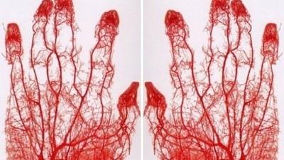 你所有血管被抽出來會變怎樣?「鑄型標本」驚悚美