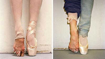 脫下芭蕾舞鞋後的雙腳,這痛沒多少人能承受..