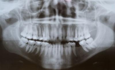 1公克牙菌斑含1千億細菌 牙周病增心臟病、中風風險