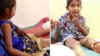 患有先天無痛症,印度姐弟吃掉自己的手指(驚)