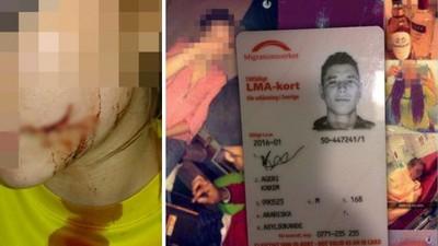 穆斯林難民割破女孩臉蛋 「她不該拒絕我親她」