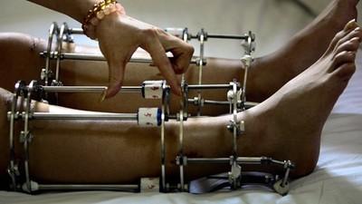 「斷骨增高」大流行,歐美人搶去印度讓無照醫生切腿骨