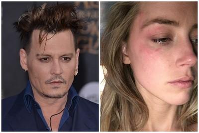 強尼戴普家暴是離婚主因!嫩妻右眼被砸淚揭「血痕照」