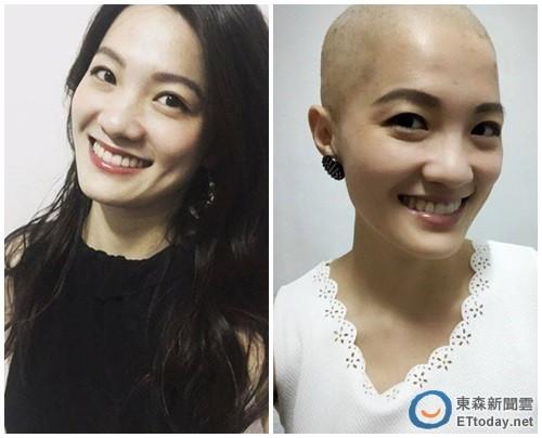 30歲禮物是乳癌 美女記者公開光頭照「別放棄美的可能」