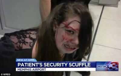 美機場就是狂!「腦癌少女」被安檢員暴打到噴血