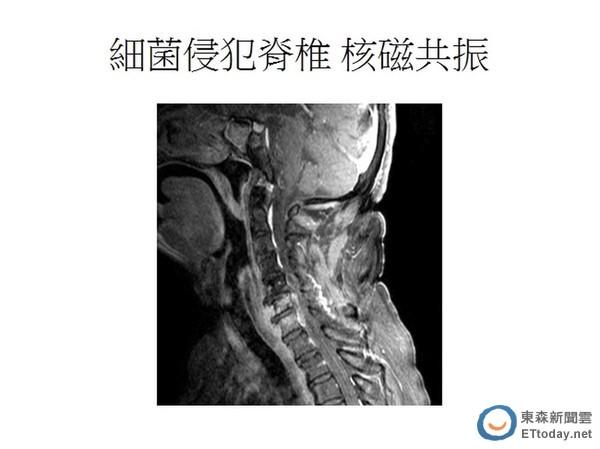 炎 脊椎 化膿 性