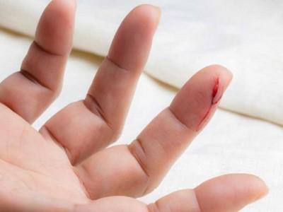 原來是這樣!紙割傷手指為啥特別痛痛癢癢?