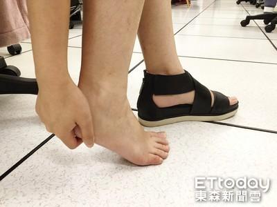 腳跟、腳底痛痛der... 物理治療師教3招緩解足部疼痛