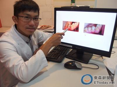 蛀牙種類多 「淺層窩洞、靜止性齲齒」易輕忽