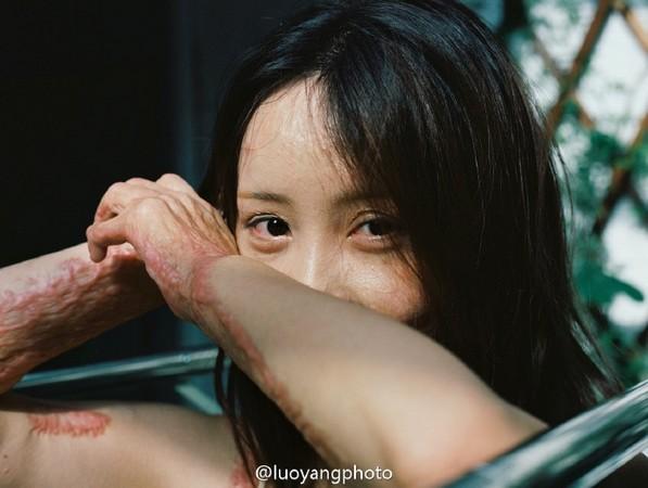 拒絕富二代追求慘遭潑油毀容 少女周岩拍寫真勇敢露傷疤