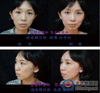 臉凹皮垂!女性35歲以後多「變臉」 膠原蛋白是關鍵
