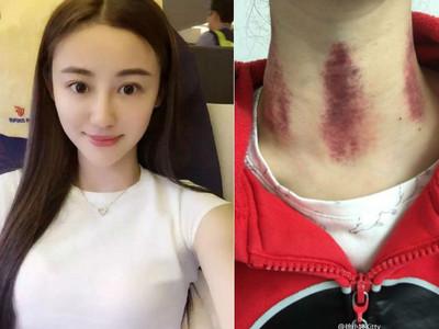 殺死徐小婷的不是淋巴癌,而是偽中醫與貧窮