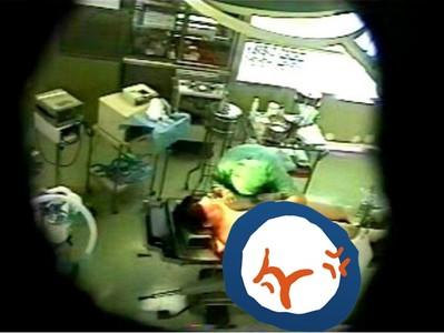 超可惡!趁女病患麻醉未退,醫生手術房直接脫衣性侵
