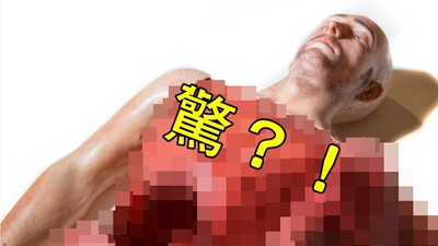 3D列印「真人」練習手術!切錯地方血就會亂噴