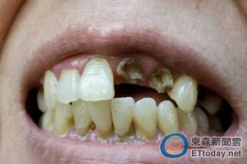 怕看牙!婦蛀牙拖到蜂窩性組織炎 嚴重恐引發腦膜炎