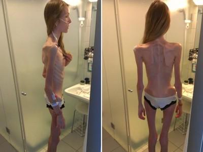 厭食症女孩自拍「全身只剩骨頭」,醫生說她差幾天就會死