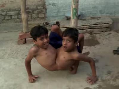 奇!出生就有「兩頭四手」,印度15歲少年現在被當神拜