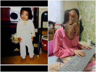 韓國妹患病「五官融化」,想化妝美美出門成最奢侈的夢