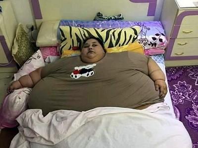 被寄生蟲變成「世界最胖女」:超過500公斤、25年下不了床