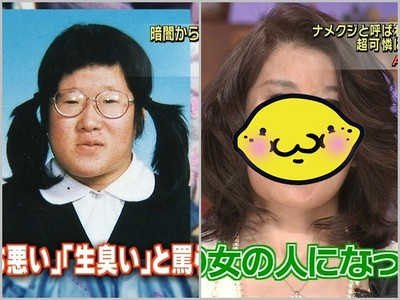 日本「腥臭女」整形後上節目 鄉民:醫生也太無能